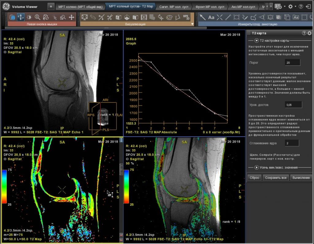 Рис. 3 б. МРТ коленного сустава с цветным картированием (mapping) суставного хряща