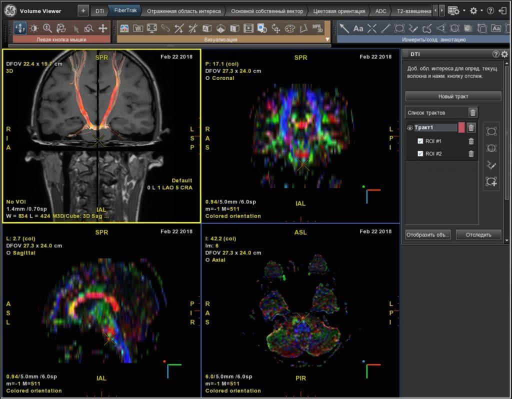Рис. 2 а. Диффузно-тензорная томография головного мозга (норма)