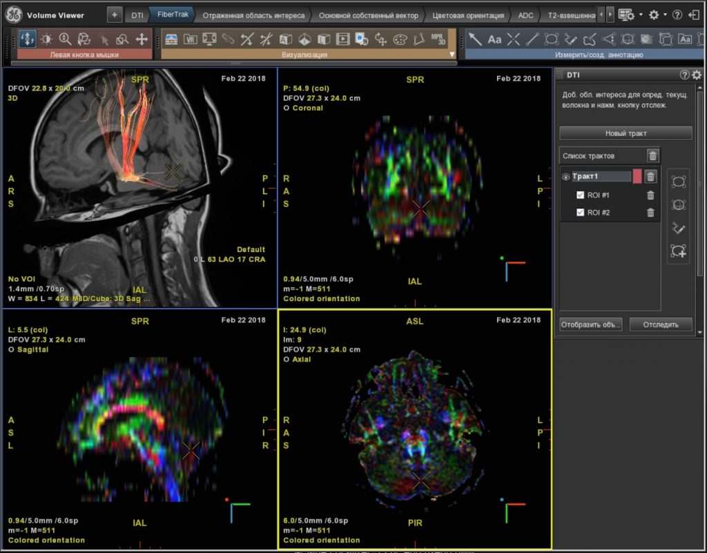 Рис. 2 б Диффузно-тензорная томография (трактография) головного мозга (норма)