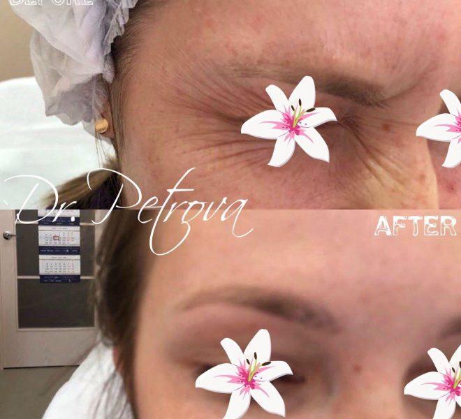Примеры коррекции мимических морщин в верхней трети лица (межбровья,области лба и вокруг глаз ) с использованием препаратов Ботокс, Диспорт, Ксеомин.